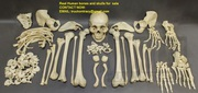 Real human skulls,  human skeletons,  and individual human bones for sal